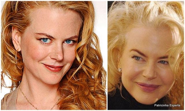 Patricinha Esperta232 Elas Exageraram no Botox