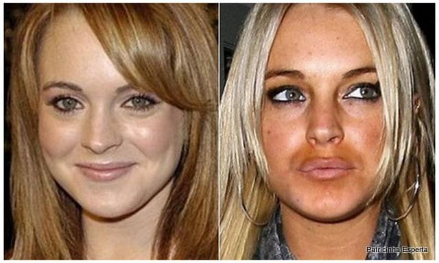 Patricinha Esperta241 Elas Exageraram no Botox