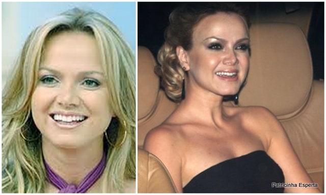 Patricinha Esperta252 Elas Exageraram no Botox