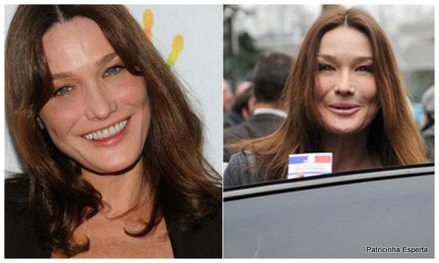 Patricinha Esperta261 Elas Exageraram no Botox