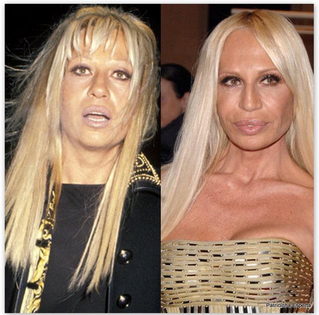 Patricinha Esperta271 Elas Exageraram no Botox