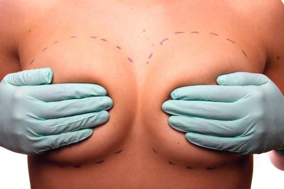 nova protese silicone mamoplastia novidades protese silicone natural Redução de Mamas : Cuidando das Cicatrizes ( parte 2)
