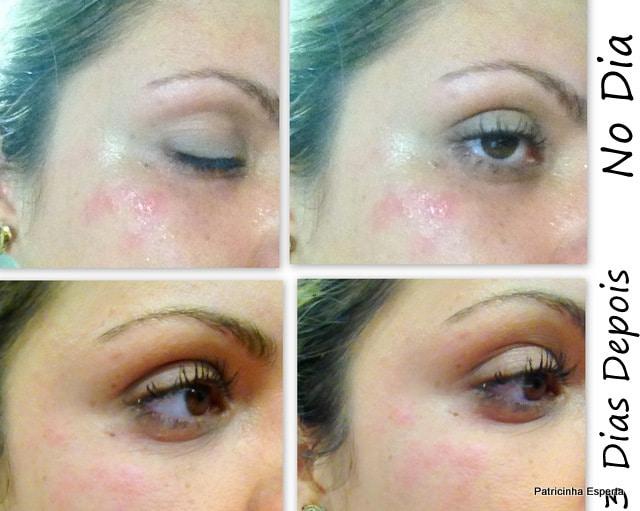Antes e depois de soro de lugares de pigmentary