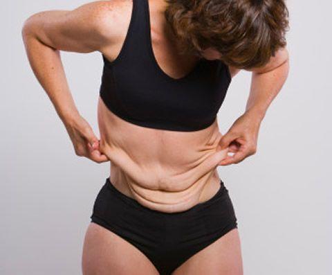 capaflacidez - Flacidez Muscular X Flacidez Dérmica