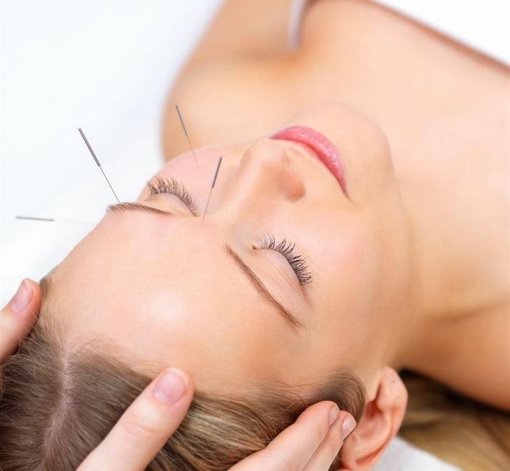 acupuntura Acupuntura elimina rugas e tira manchas do rosto