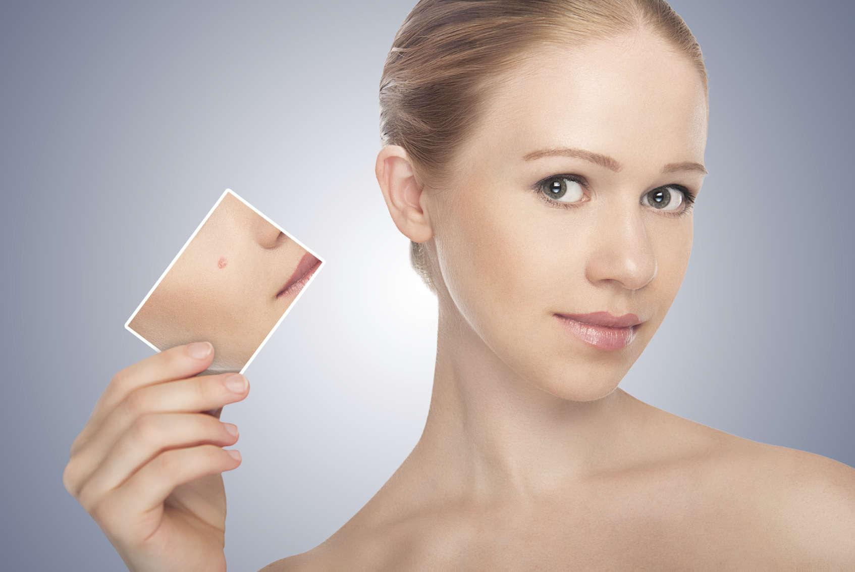 Tipo de acne do rosto