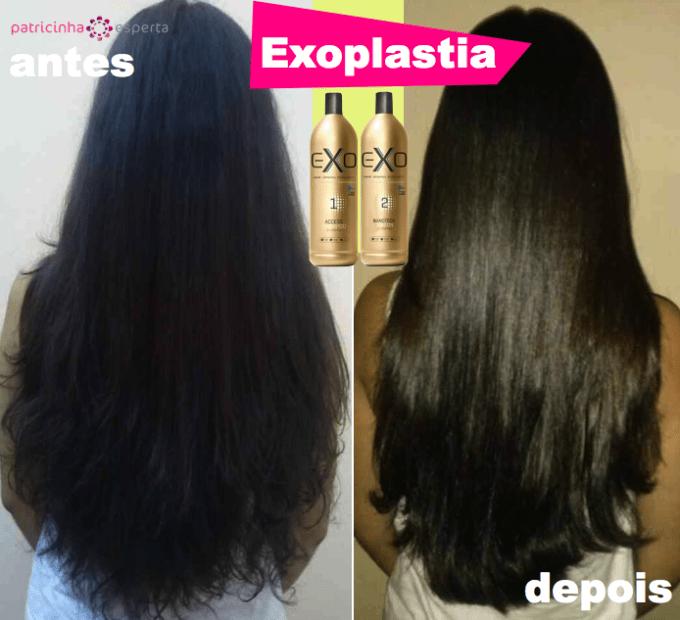 exoplastia.001 680x620 - Exoplastia Exo Hair: Como usar e Antes e Depois!