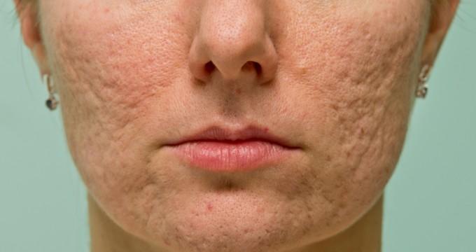 Problematic skin
