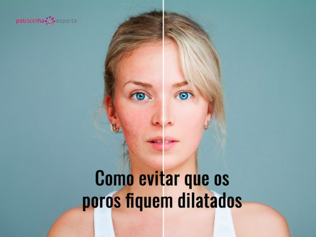young model woman with skin problem female face divided into two one picture id687927830 621x466 - Poros Dilatados - Melhores Tratamentos