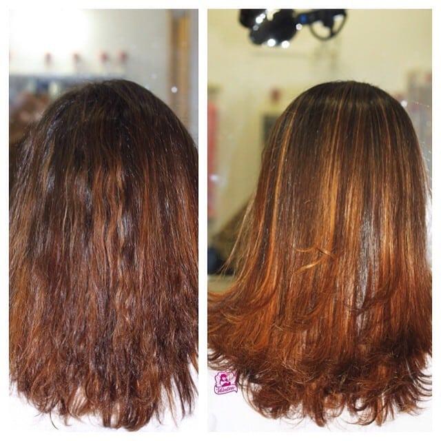 exoplastia exo hair