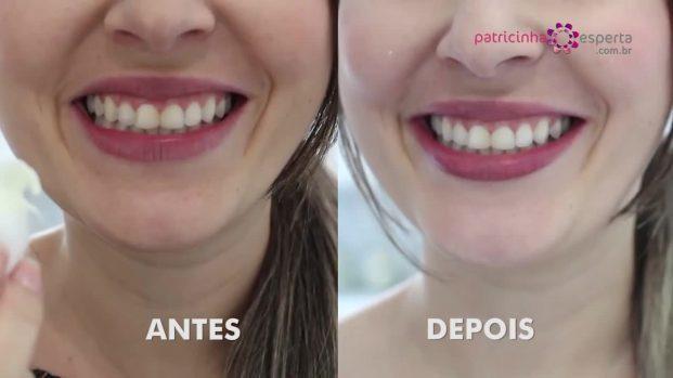 Clareamento Dental Com Bicarbonato E Limao Janeiro 2019