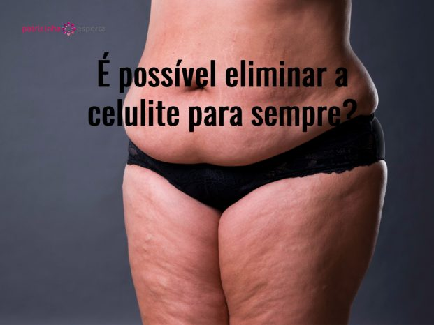 woman with fat abdomen overweight female stomach stretch marks on picture id665329496 621x466 - Celulite Nas Pernas Tratamentos! ✅ O Guia Completo