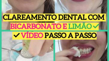clareamento dental com bicarbonato1 364x205 - Clareamento dental com BICARBONATO e LIMÃO ⬅