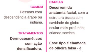 OLHEIRAS 364x205 - Tipos de olheiras - Causas, Tratamentos